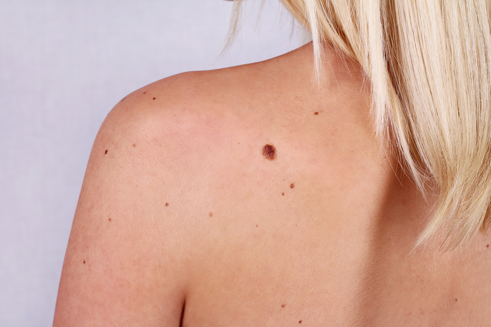Expert advice on problem skin conditions