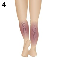 Stage 4 -Chronic Venous Insufficiency
